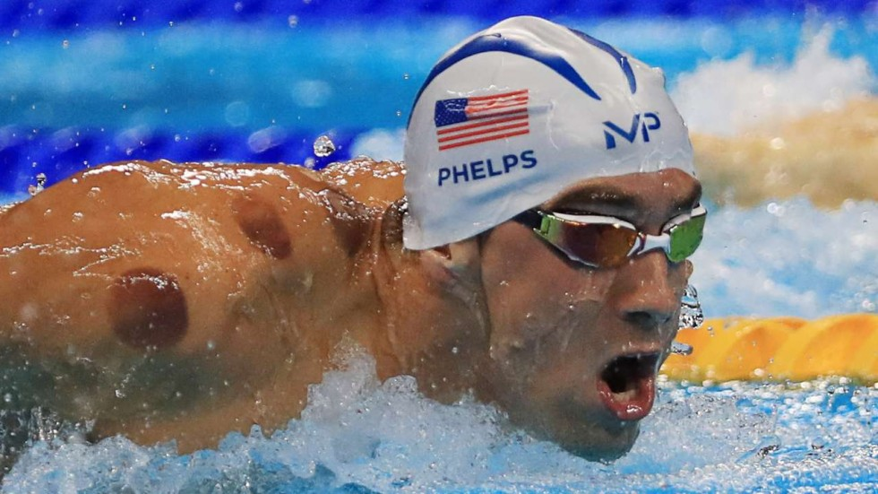 The Phelps Effect: the New Popularity of Cupping Therapy